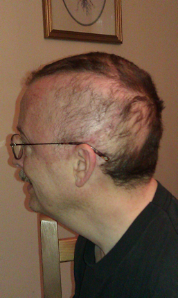 Losing hair, day 14 of radiology.